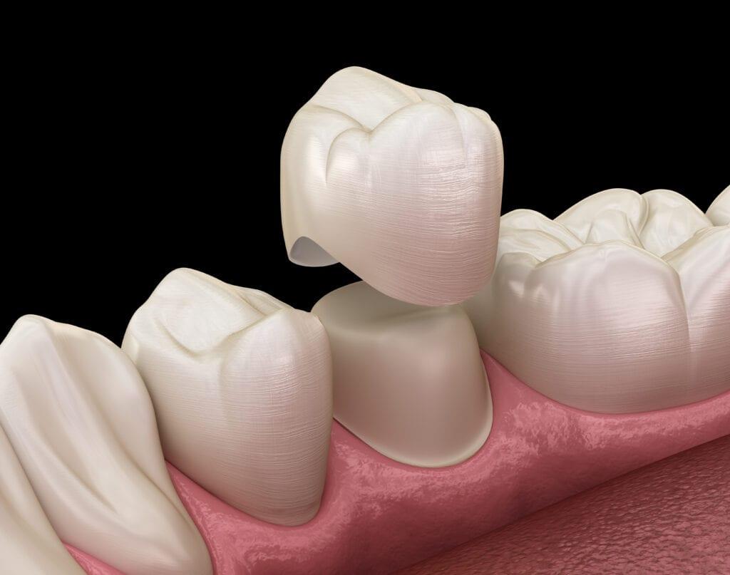 Dental Crown 32 Pearls Seattle Dentist